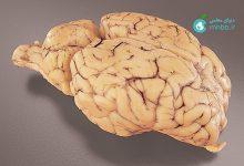 تصویر از تشریح مغز