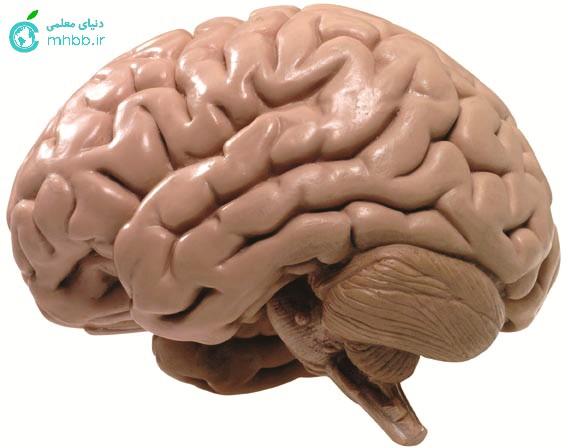 چین خوردگی مغز و مخچه