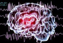تصویر از نوار مغز یا آنسفالوگرام (EEG)