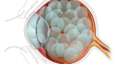 تصویر از عدسی چشم